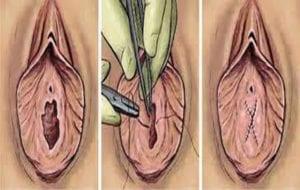 Hymenoplasty Surgery