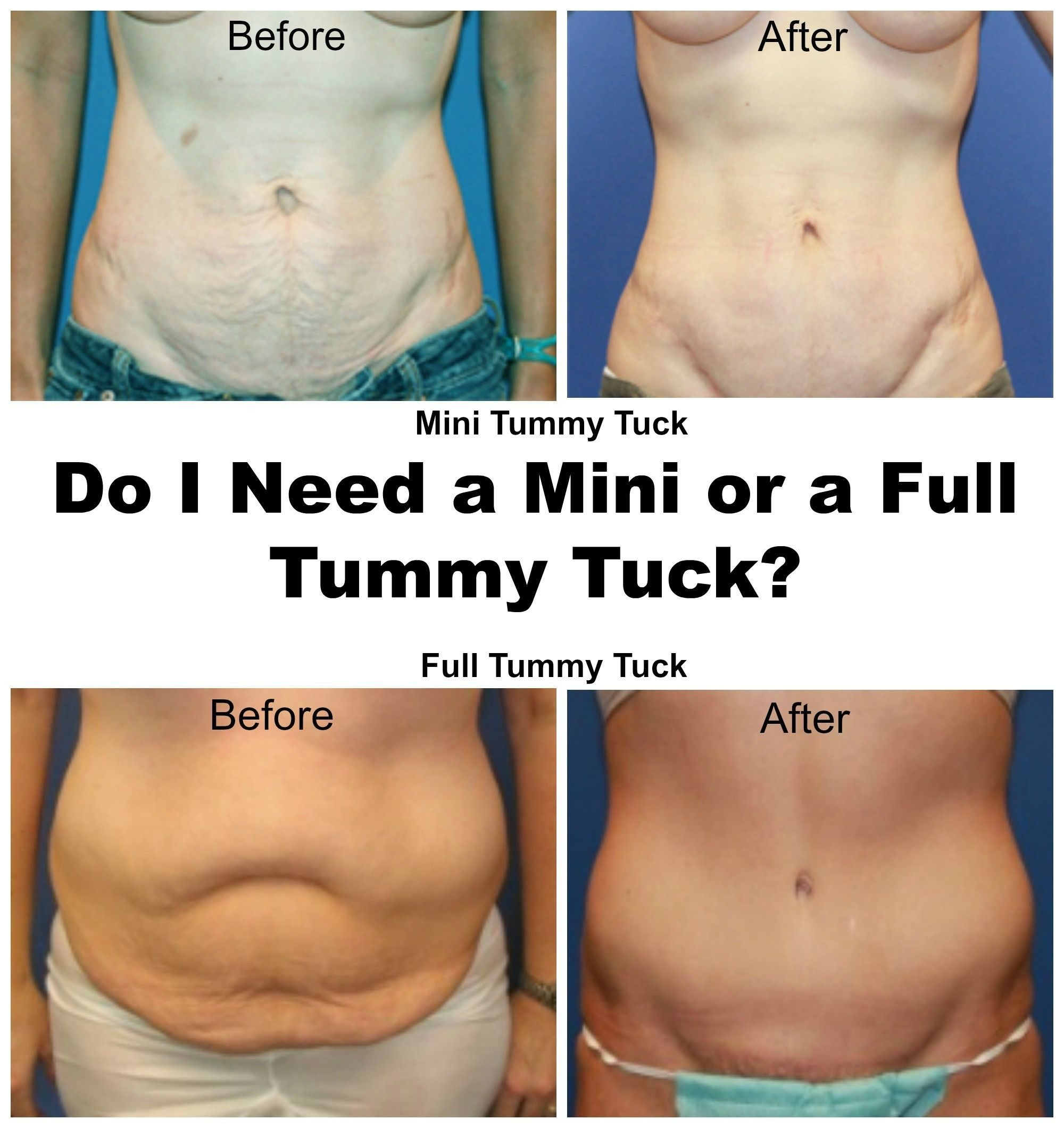 Tummy Tuck Cost in Bangalore - Compare Prices, Reviews, Best