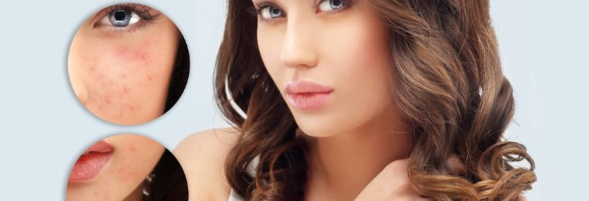Acne & Acne Scar Removal in Dhaka – Find Cost Estimate, Best Dermatologists, Reviews and Book Appointment