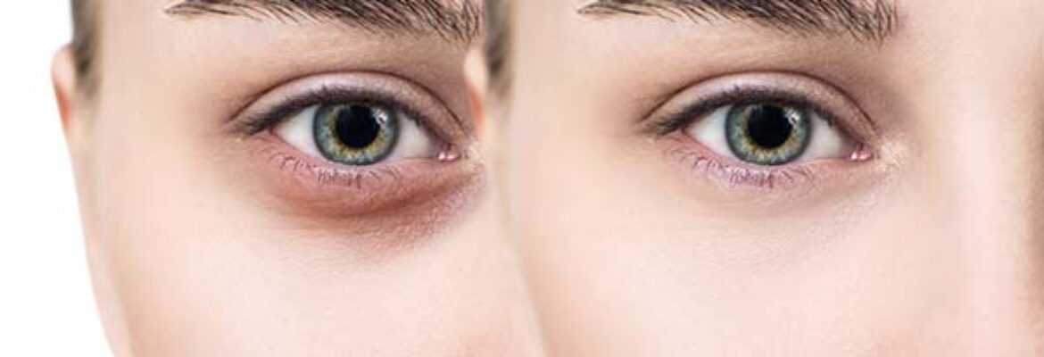 Dark Circles Removal under Eyes in Dhaka – Find Cost Estimate, Best Dermatologists, Reviews and Book Appointment