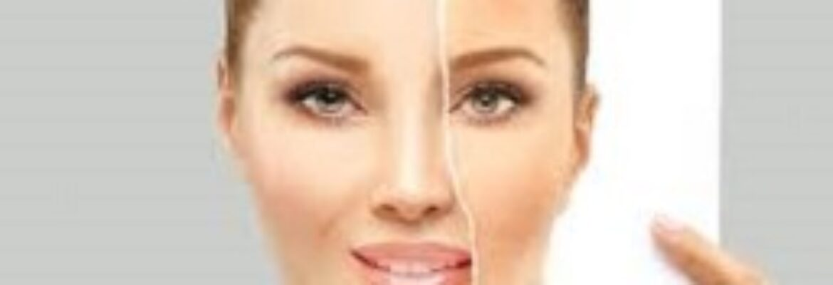 Melasma Treatment in Dhaka – Find Cost Estimate, Reviews, Best Dermatologists and Book Appointment